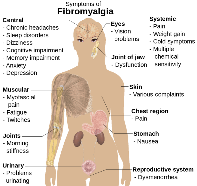 Symptoms_of_fibromyalgia.svg.png